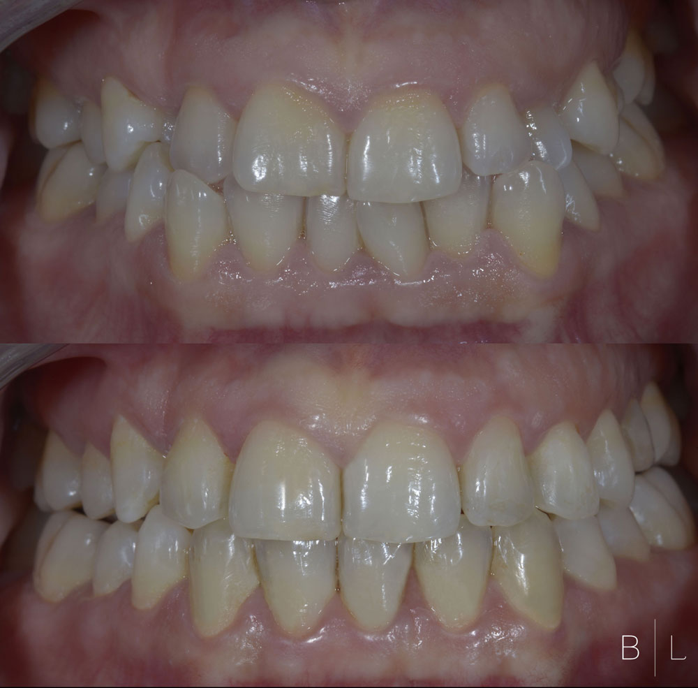 11-Invisalign-antibes-french-riviera