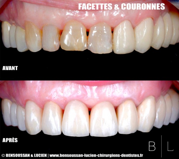 facette-couronnes-dentistes-antibes