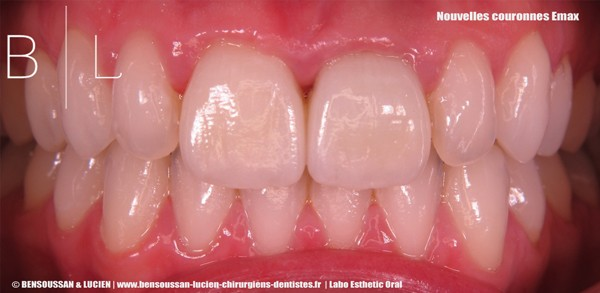 dentiste_antibes_couronnes-Emax_low