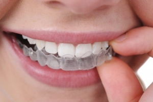 Appareil dentaire invisible Invisalign à Antibes